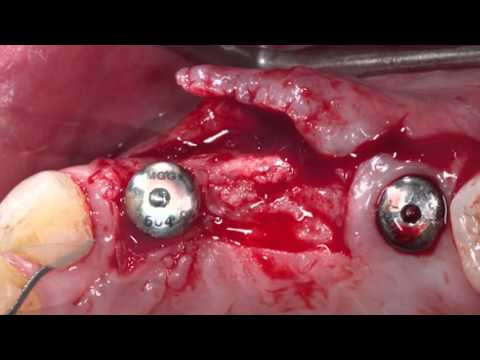 Creating attached gingiva using a split thickness apically repositioned flap - Dr HL Gluckman-HD