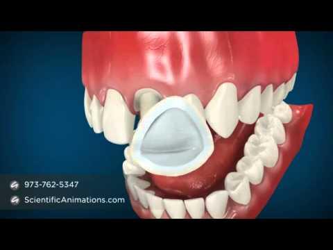 Dental Cap Procedure -- Tooth Caps