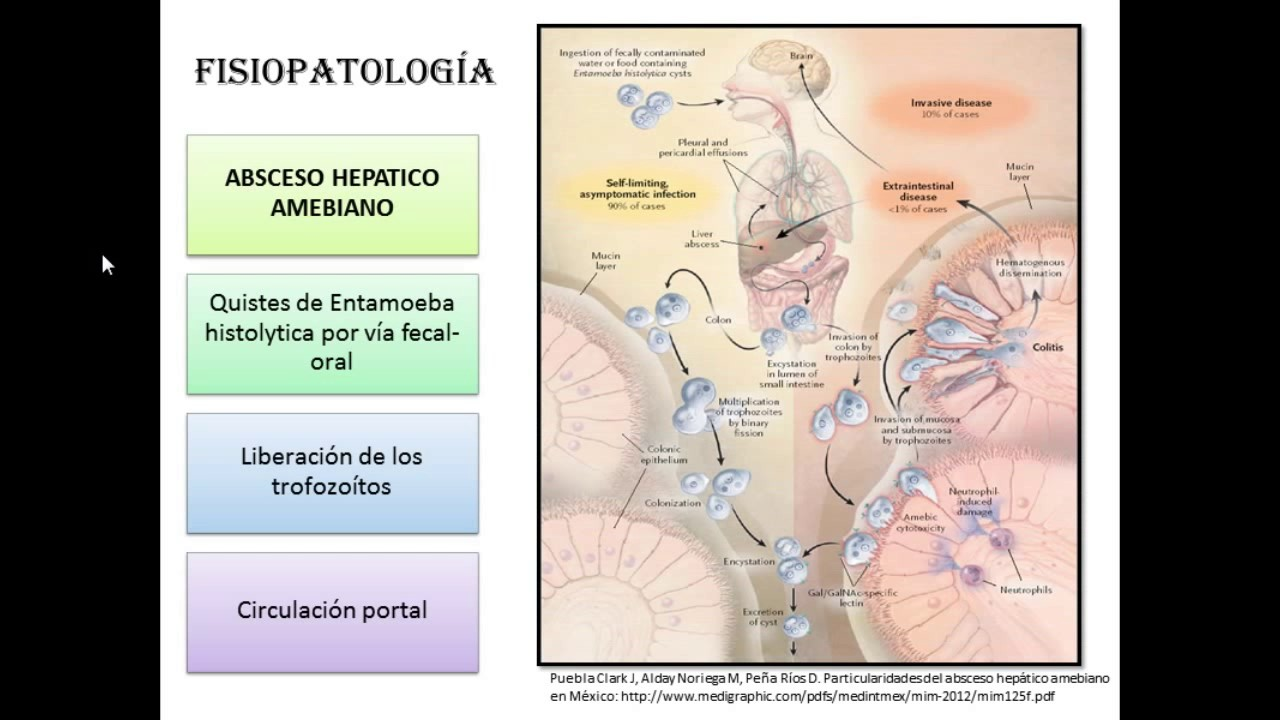 video de fisiopatología de la diabetes hepática