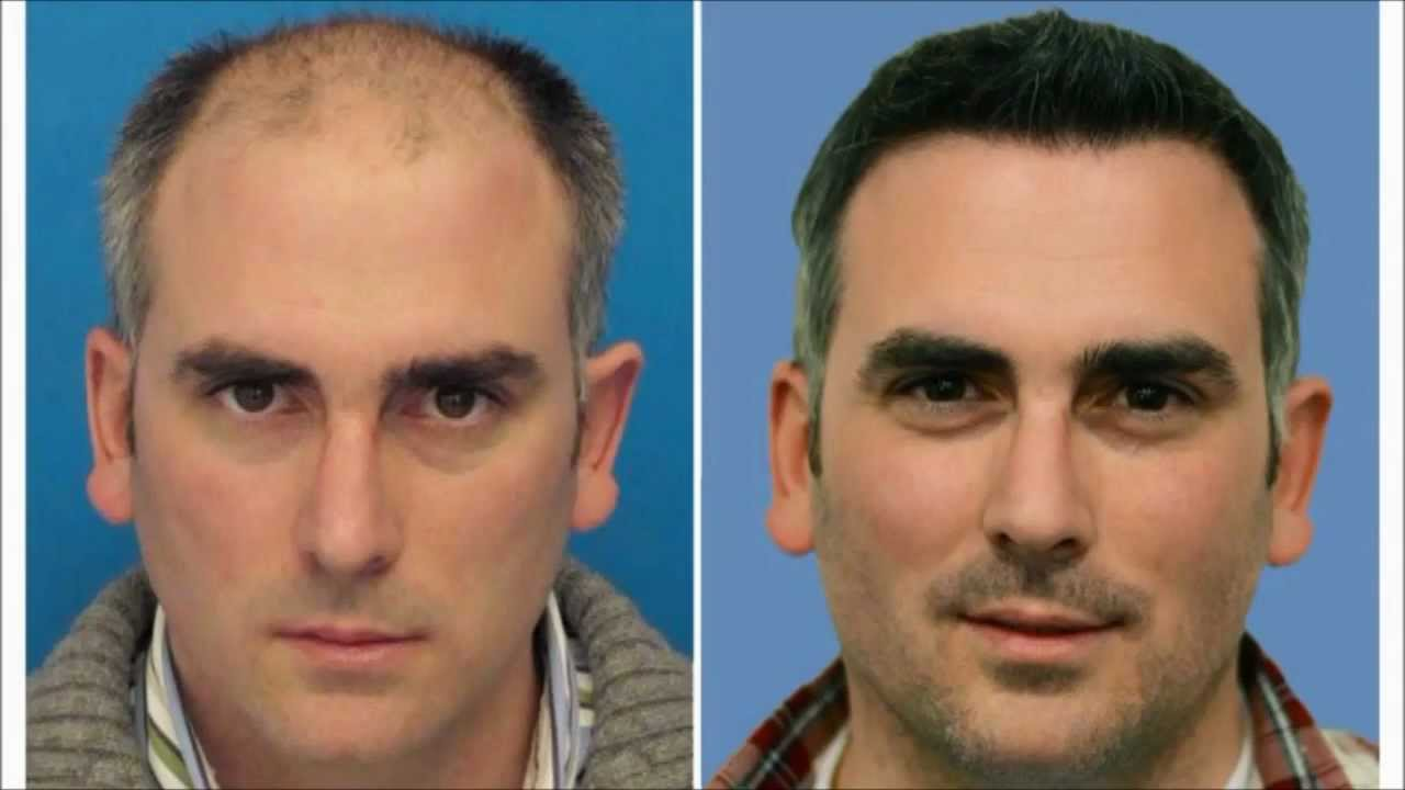 Eyebrow Hair Transplant Mind Blowing Results Youtube