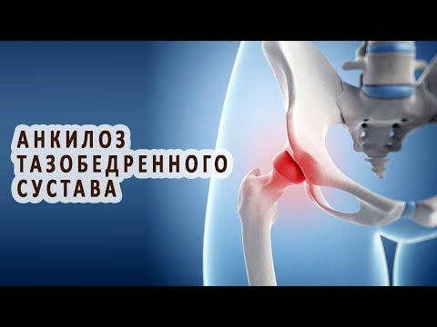 Что нужно знать об анкилозе тазобедренного сустава
