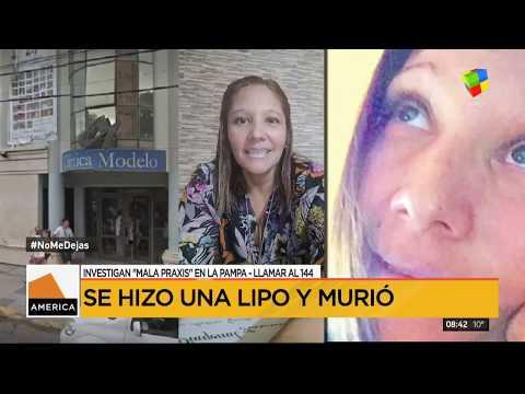 La Pampa: se hizo una lipo y murió