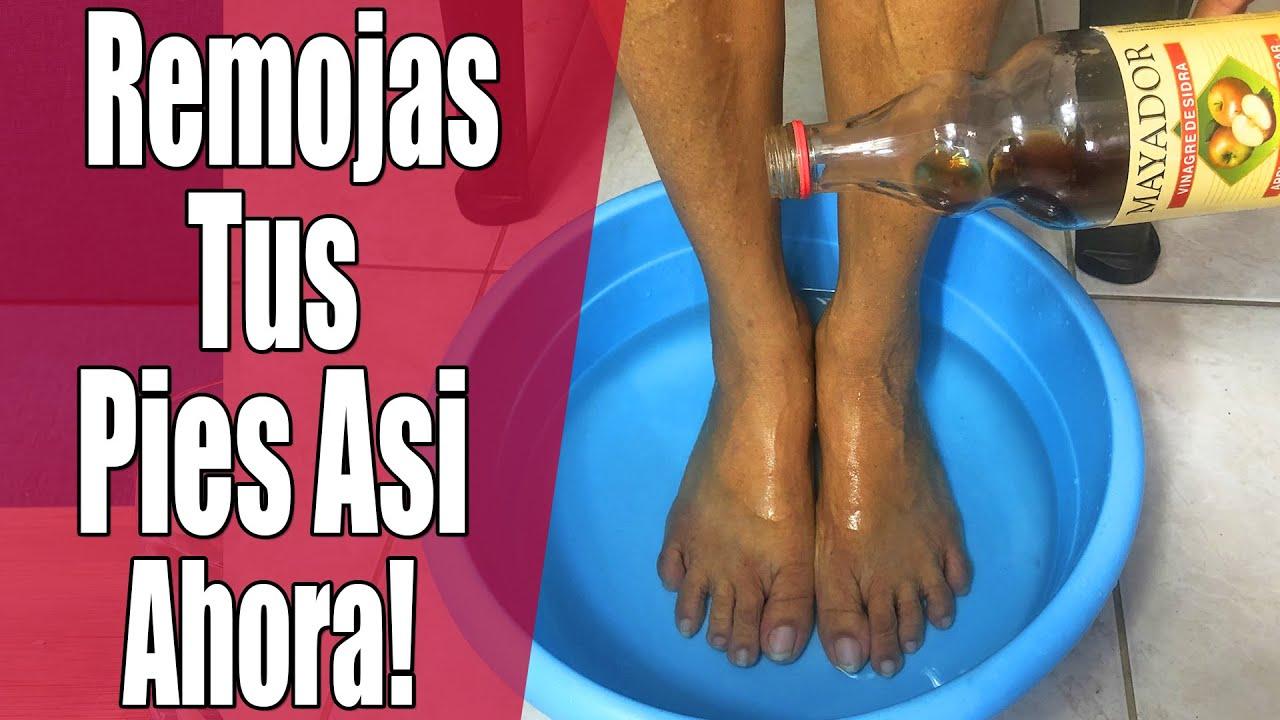 Remoja tus pies en vinagre de manzana por 15 minutos y adios los hogos de los pies