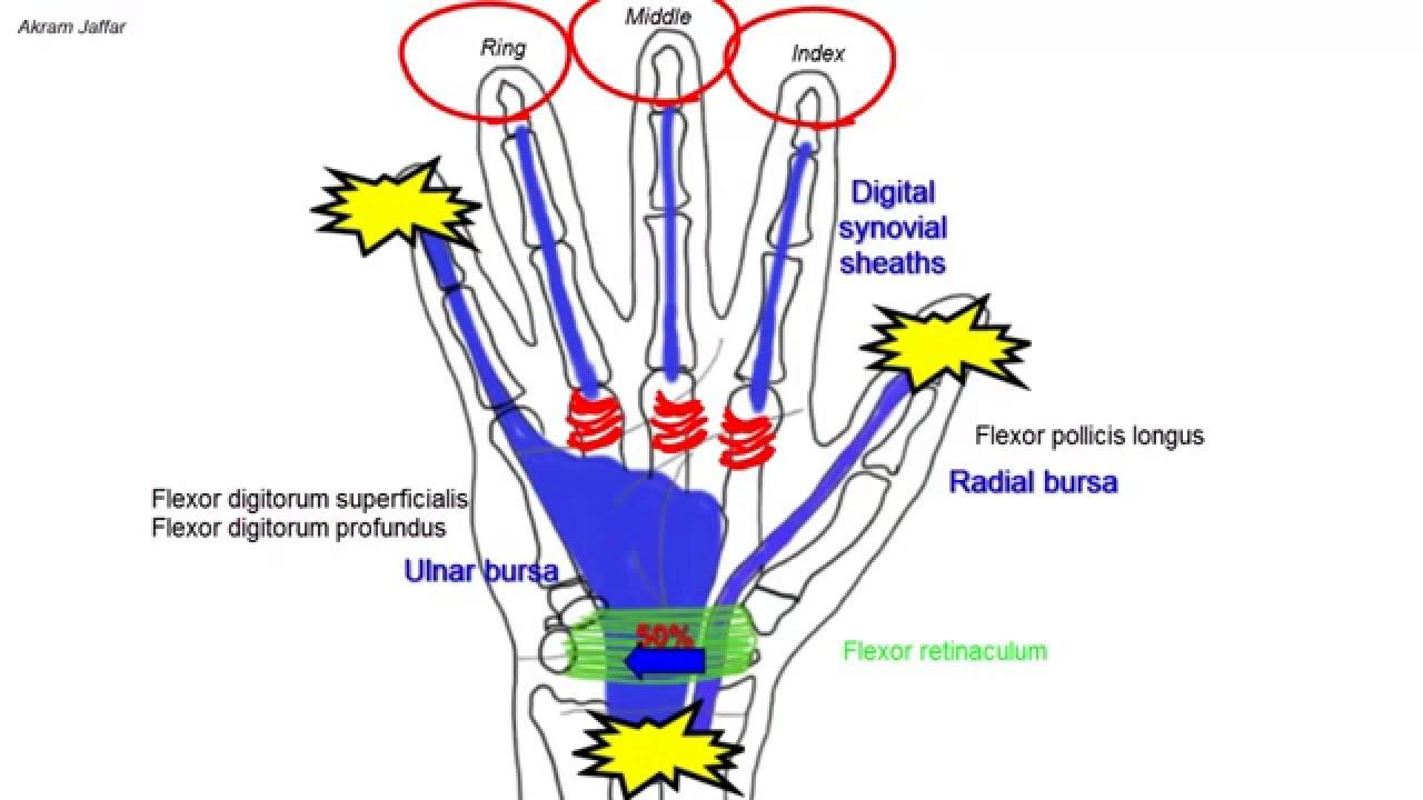 Synovial Flexor Sheaths In The Palm Youtube