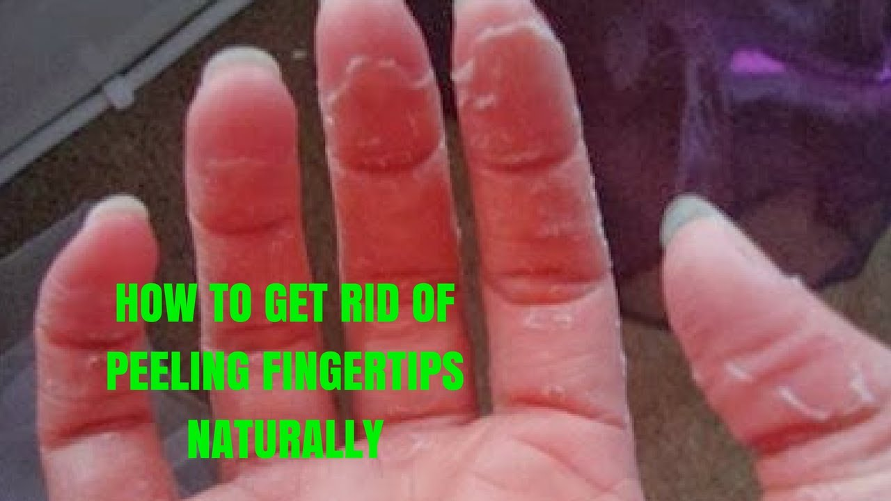 HOW TO GET RID OF PEELING FINGERTIPS NATURALLY