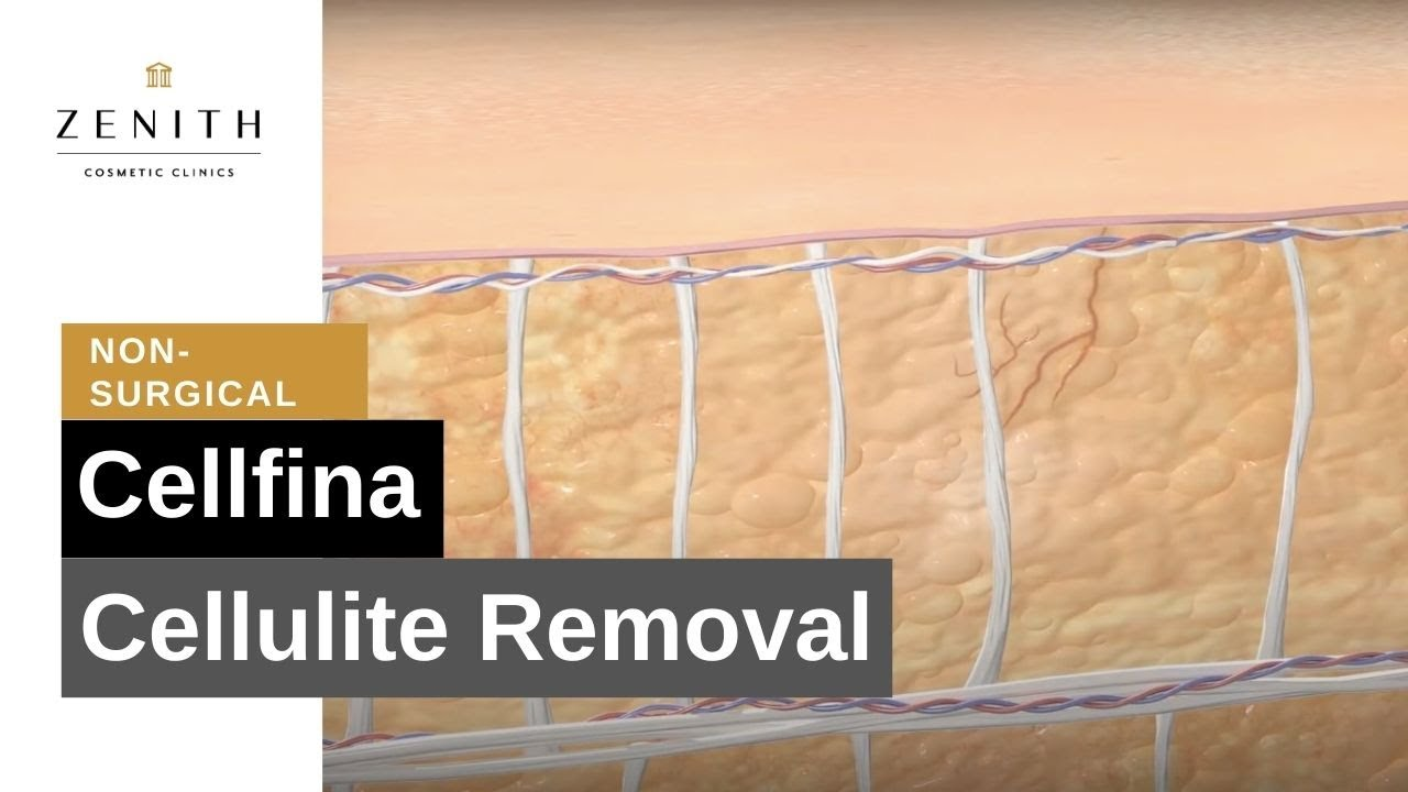 Cellulite Removal Treatment – Cellfina!