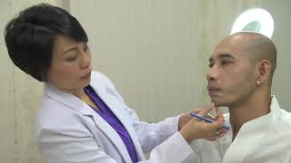 Chin Filler Treatment with Aziz Samudra