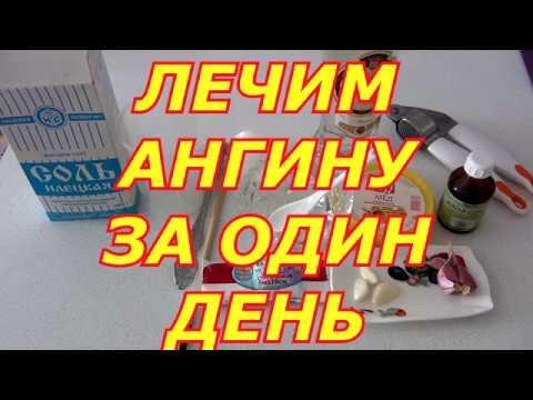 ЛЕЧИМ АНГИНУ ЗА ОДИН ДЕНЬ!