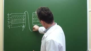 Схема непрерывного скорняжного шва Шмидена на переднюю губу межкишечного анастомоза