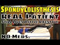 Spondylolisthesis, Real Patient Still Lives Active Lifestyle- No Meds.