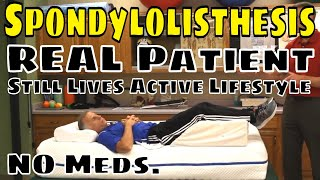 Spondylolisthesis, Real Patient Still Lives Active Lifestyle- No Meds.