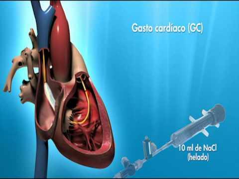cateterismo cardiaco que es