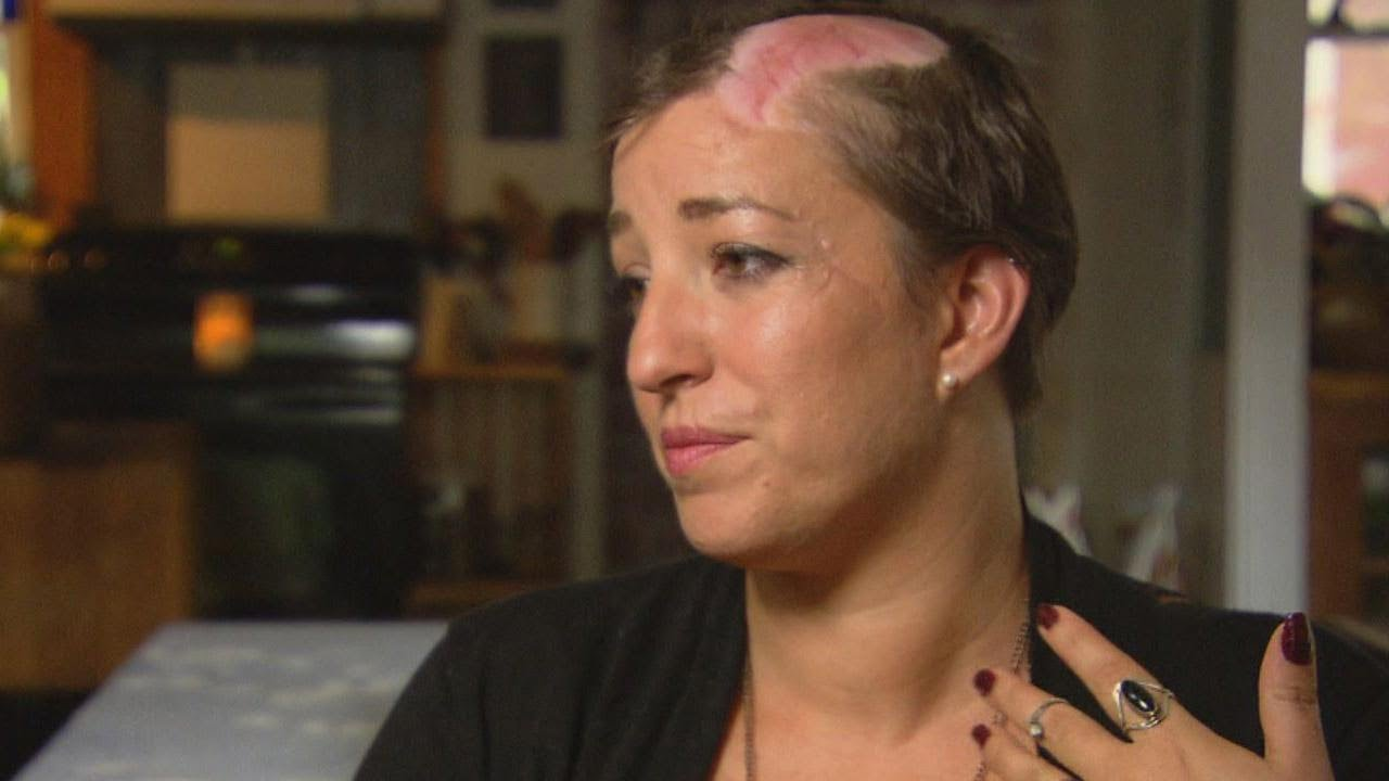 Woman Scalped by Car Fan