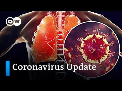 Multiorganvirus SARS-CoV-2 +++ Debatte um Lockerungen | Coronavirus Nachrichten zur aktuellen Lage