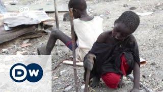 مخيم ملكال جنوب السودان: صراع عرقي أمام أنظار البعثة الأممية  | الأخبار