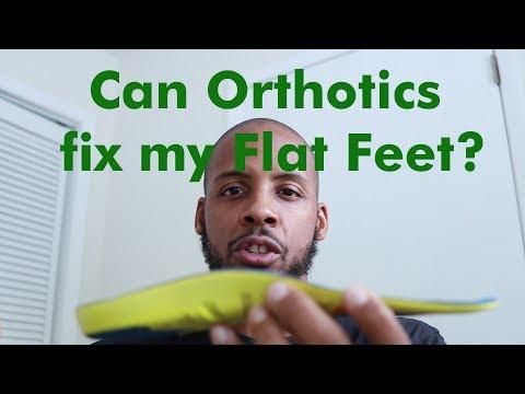 can-orthotics-fix-flat-feet