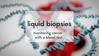 Liquid biopsies to monitor cancer