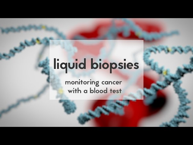 Liquid biopsies to monitor cancer