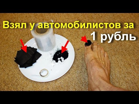 Мощнейшее бесплатное средство от грибка ногтей. Как лечить грибок ногтей на ногах. Врачи в шоке