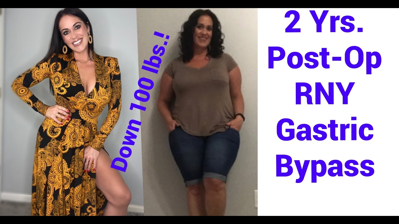 2 Yrs Post-Op + Motivation + 100 lbs. down + Nutrition + NSV's + Running | RNY Gastric Bypass | WLS