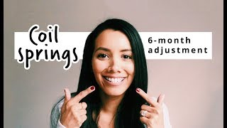 4 COIL SPRINGS | 6-month adjustment update | ADULT BRACES
