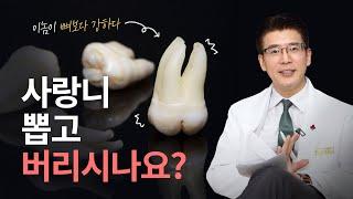 치아이식에 사랑니를 사용한다? 냉장고에 보관하면 될까요…