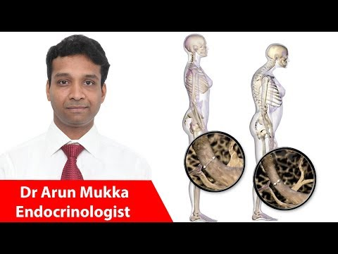 Osteoporosis and Diabetes - Symptoms, Diagnosis & Treatment | Dr Arun Mukka #Endocrinologist