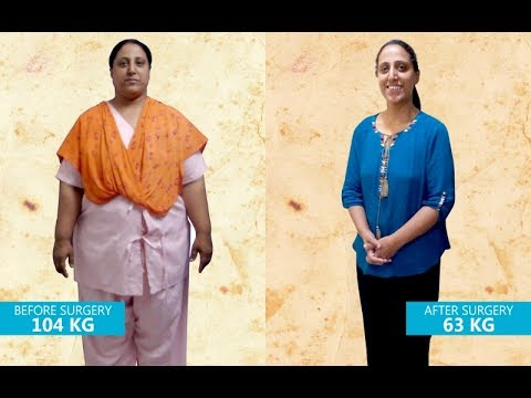 Results Of Mini Gastric Bypass Surgery In India 104kg To 63 Kg In