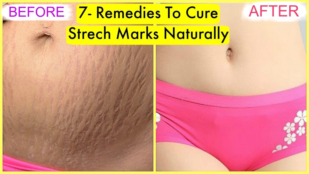 How To Cure Stretch Marks At Home Naturally Fast 7 Best Remedies