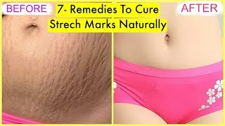 7- Home Remedies To Cure Stretch Marks Naturally Fast | SuperPrincessjo