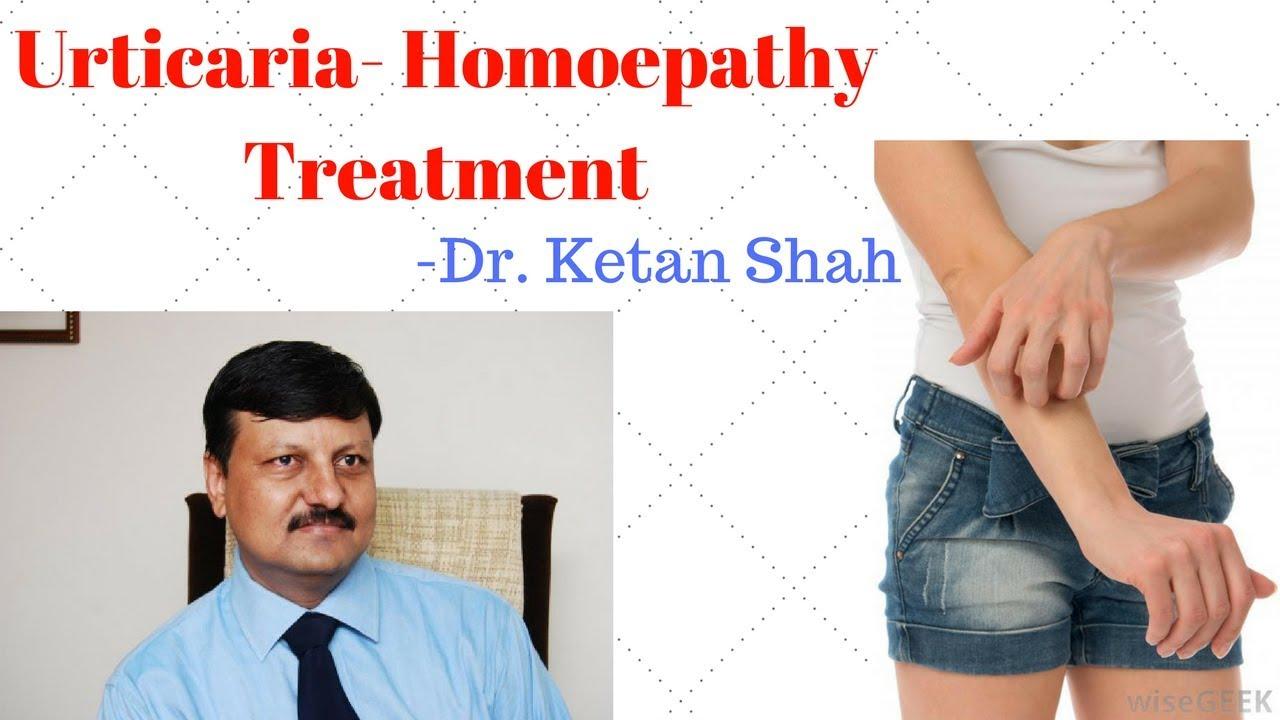 URTICARIA-HIVES(पित्ती)(શીળશ) Treatment in Homeopathy- Dr  Ketan Shah(M D   - Homeopath)