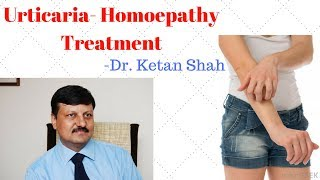 URTICARIA-HIVES(पित्ती)(શીળશ) Treatment in Homeopathy- Dr. Ketan Shah(M.D. - Homeopath)