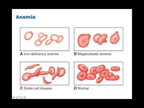 Chapter 13 Disorders of Red Blood Cells BIO216