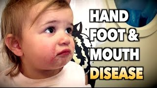 HAND, FOOT, & MOUTH DISEASE (Live Diagnosis) | Dr. Paul