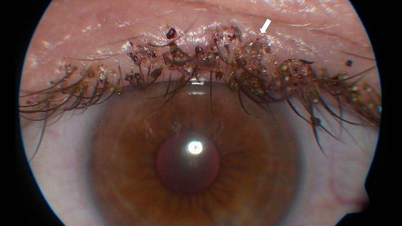 Piojos En Cejas Y Pesta 241 As Pediculosis Cejas Y Pesta 241 As