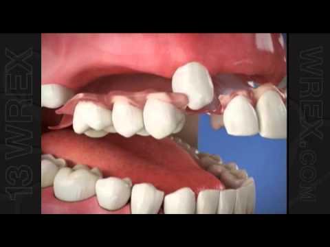 Dentures dating