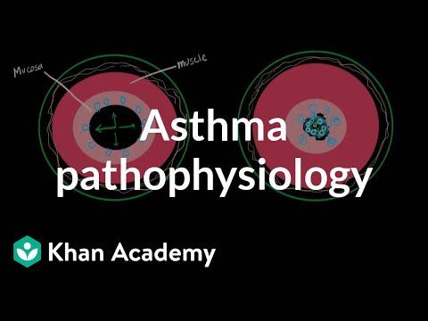 Asthma pathophysiology | Respiratory system diseases | NCLEX-RN | Khan Academy