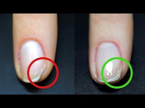 Как нарастить кусочек ногтя
