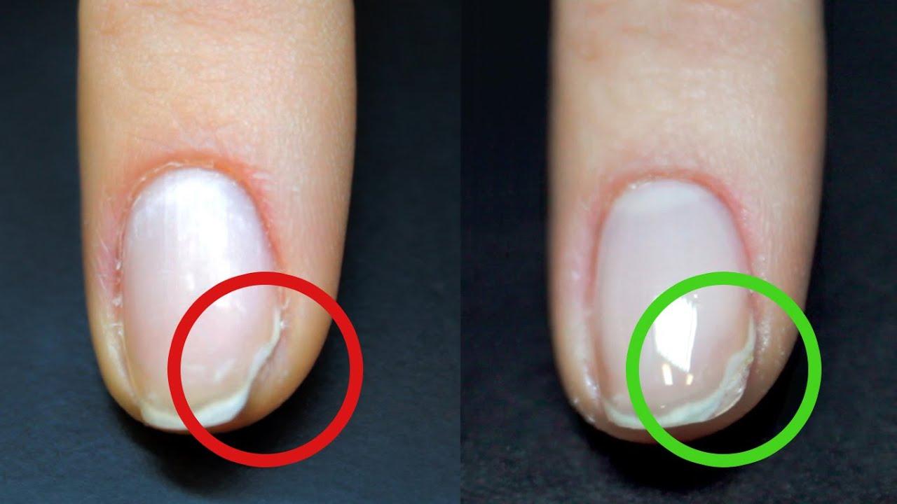 Почему гель лак отходит от кончиков ногтей