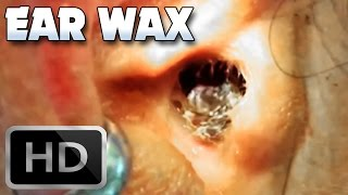 Worst Ear Wax Removal on YouTube!