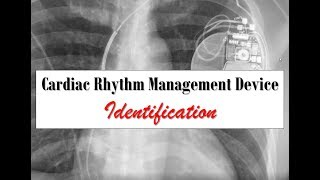 Cardiac Rhythm Management Device Identification