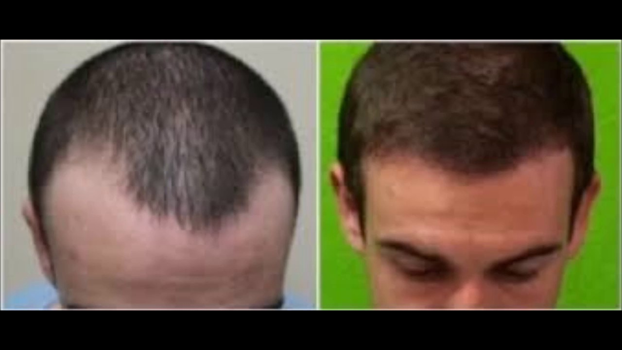 Steroid Hair Loss Before And After Steroid Hair Loss Before And After