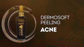 Peeling Acne: redução de acne e clareamento