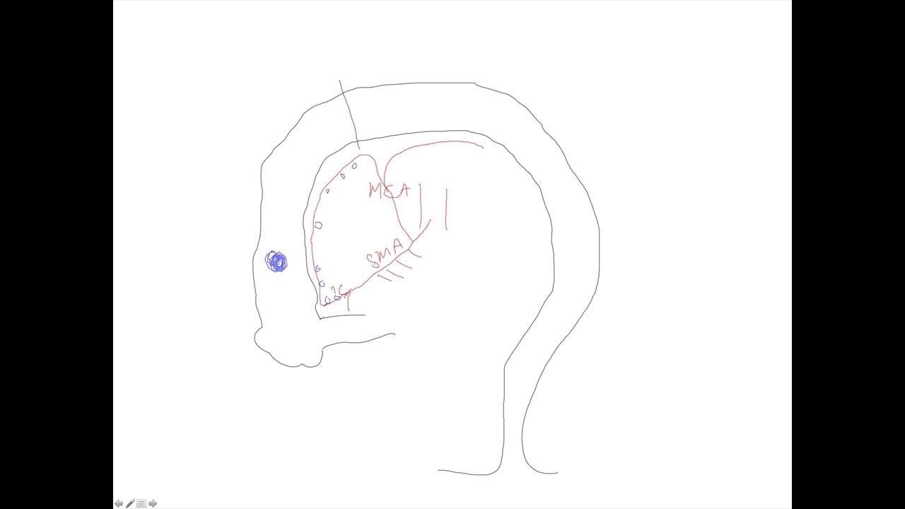 Right Hemicolectomy Explained Youtube