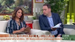 Elhunyt a szépségkirálynő: Ezért nem derülhetett ki korábban Koller Katalin betegsége? thumbnail