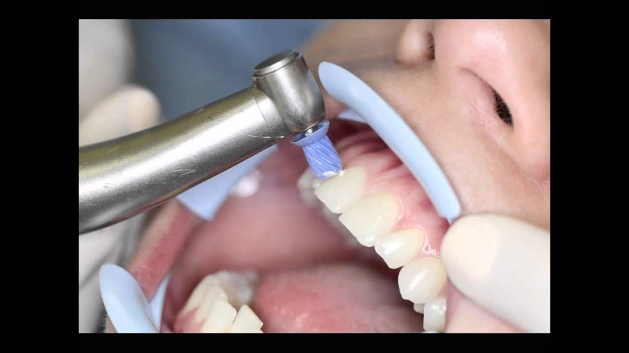 Dantų balinimo priemonė