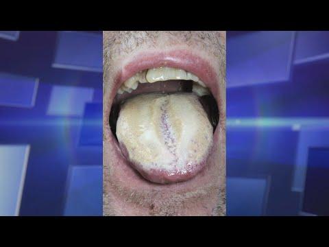 Is Oral Thrush Caused by Antibiotics?