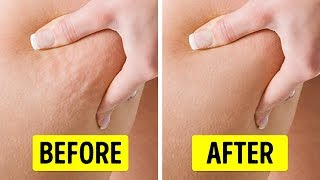 Video 6 Exercises to Get Rid of Cellulite in 2 Weeks download MP3, 3GP, MP4, WEBM, AVI, FLV Agustus 2018