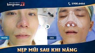 Cận cảnh quá trình nẹp mũi sau khi nâng tại Kangnam
