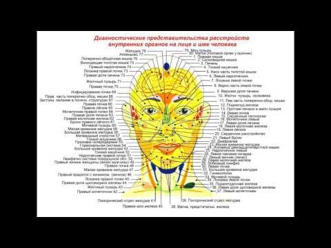 Лечение прыщей Прыщи на лице, лбу, подбородке, носу